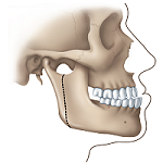Protruding Jaw before diagram