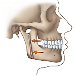 Protruding Jaw after diagram
