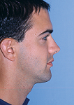 Protruding Jaw after photo